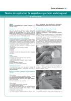 Técnica de aspiración de secreciones por tubo endotraqueal.pdf